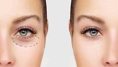 تصویر نکاتی درباره جراحی زیبایی پلک