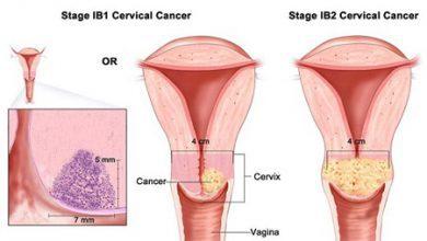تصویر سرطان رحم و نکاتی مربوط به آن