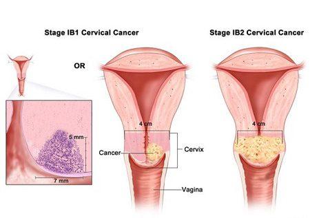 جلوگیری از سرطان رحم,درمان سرطان رحم