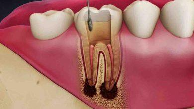 تصویر عصب کشی دندان